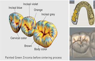 Full Zirconia